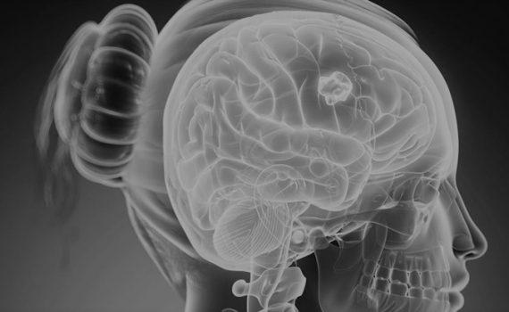 """As Gorduras são """"drogas""""para o cérebro?"""
